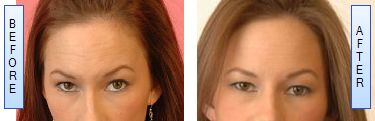 before-after botox pictures to explain how it works after few weeks