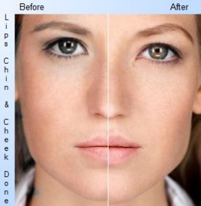 dermal fillers facelift is the cheapest non-surgical option
